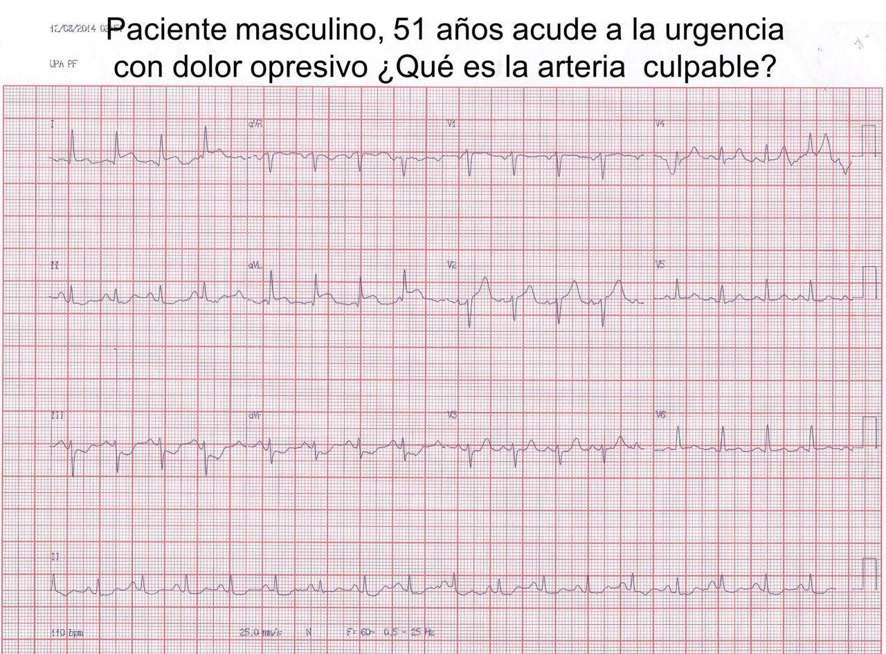 Paciente de 51 años con angor prolongado por IAM de pared media anterior por lesión de arteria 1ª diagonal