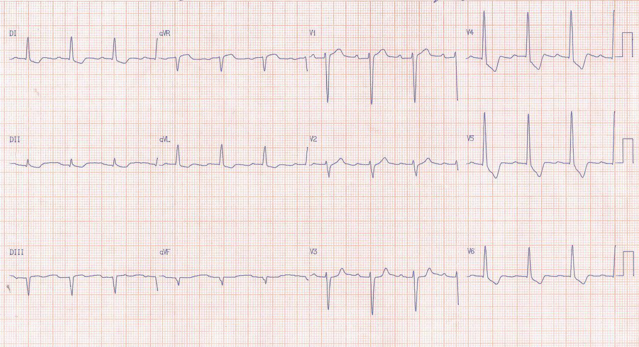 Hombre de 54 años con IRC dialítica que presenta dolor precordial intenso por pseudoisquemia circunsferencial, con arterias coronarias normales