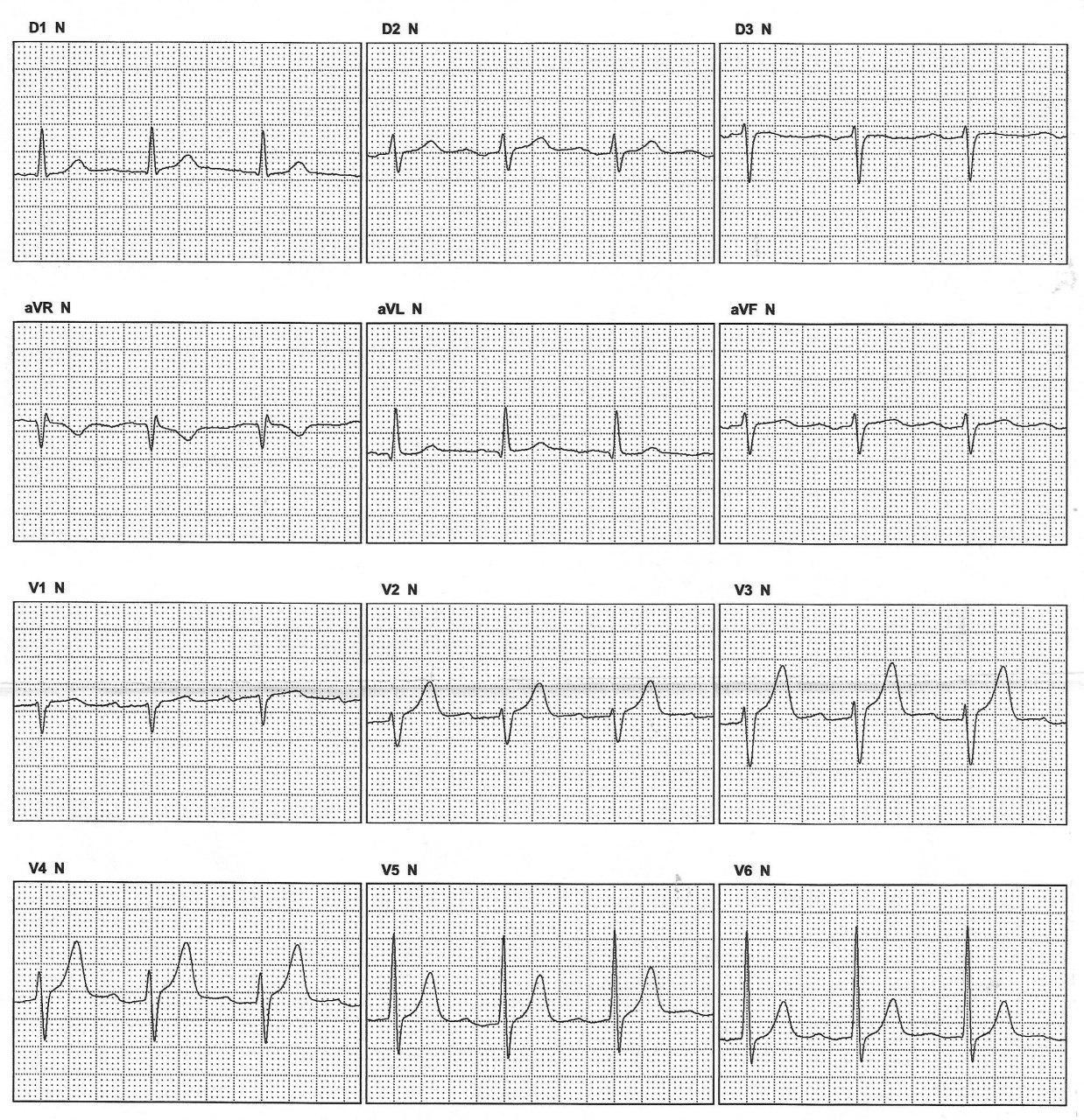 Hombre que 6 meses después de ablación de FA muestra en el ECG signos premonitorios de recurrencia, que acontece a posteriori