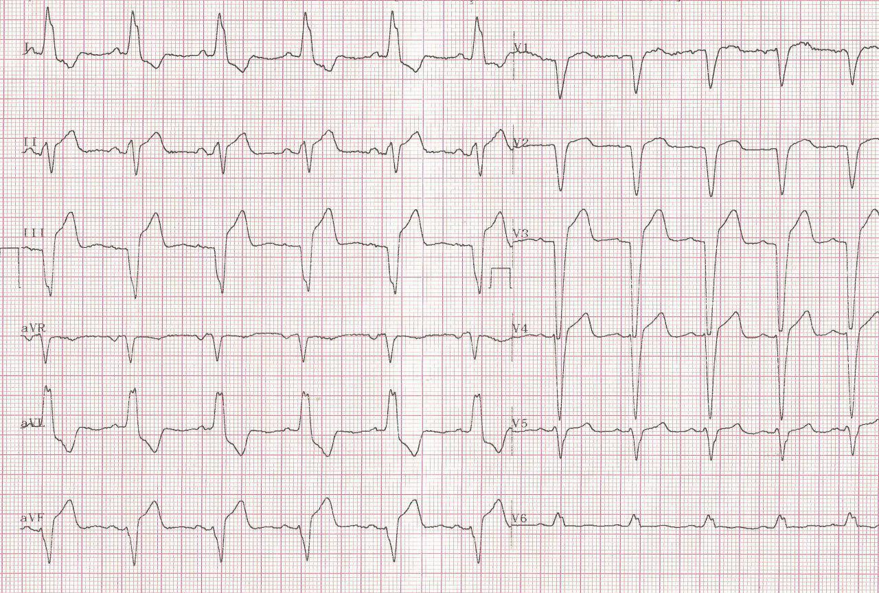 Hombre de 52 años que presenta IAM de cara inferior asociado a BCRI por oclusión de la arteria ventricular posterior rama de la CD
