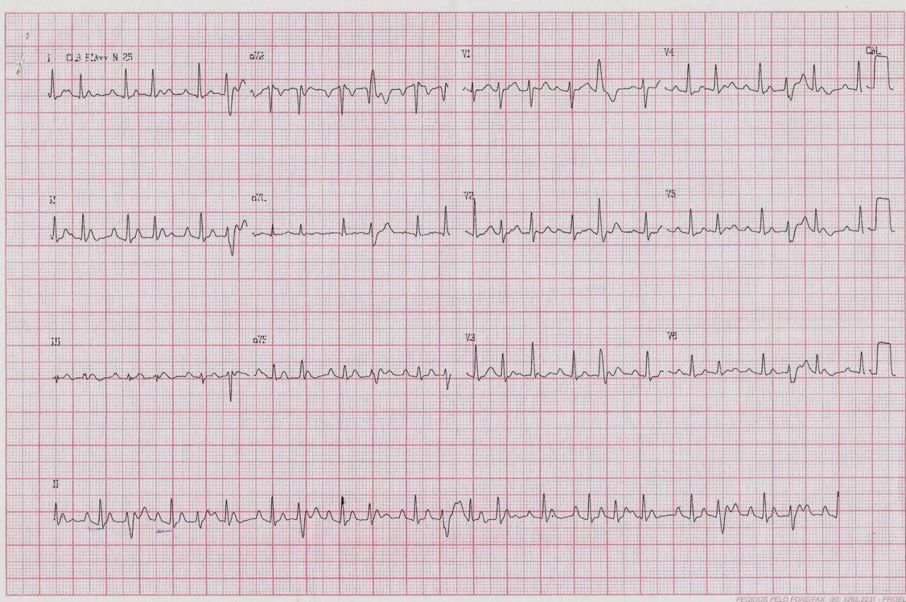 Mujer de 39 años con palpitaciones por presentar taquicardia auricular automática con grados variables de BAV y aberrancia en fase 3 de ciertos latidos, que cede con metropolol EV