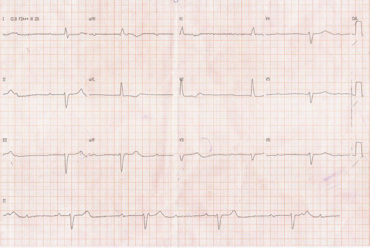 Mujer de 66 años con fatiga y presíncope por BAVC con un ritmo de escape lento de QRS ancho lo cual indica localización infranodal del BAV