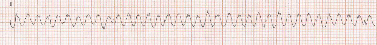 Paciente de 71 años que presenta temblor parkinsoniano con ECG que simula una taquicardia de QRS ancho