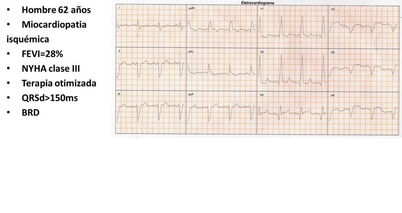 Paciente de 62 años portador de miocardiopatía isquémica con implante de CDI-R