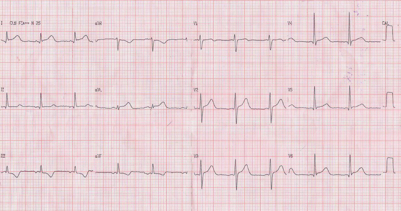 Paciente masculino de 44 años con SCACEST en D1 y aVL por compromiso de arteria 1ª diagonal