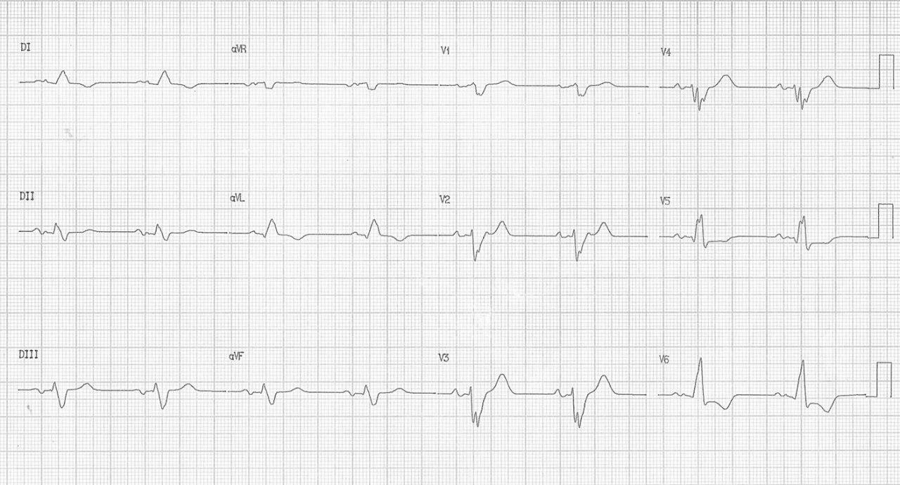 Mujer de 56 años portadora de miocardiopatía dilatada no isquémica, con antecedente de ACV isquémico en espera de implante de resincronizador