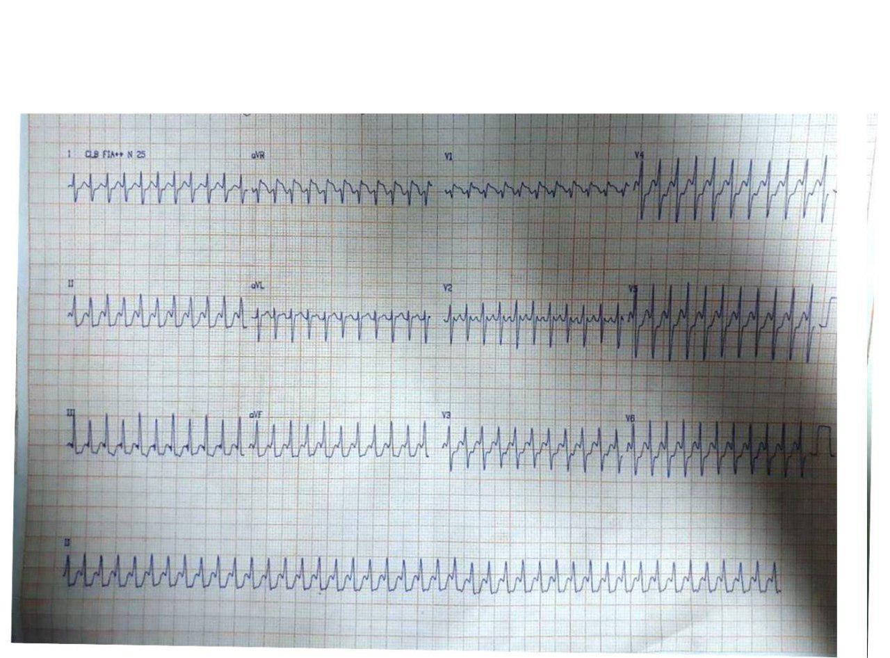 Paciente de 48 años que desarrolla taquimiocardiopatía por aleteo auricular 1:1 que no revierte con adenosina