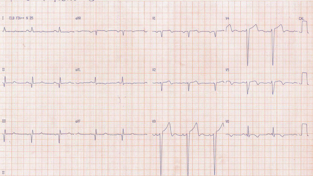 Paciente de 67 años, hipertenso y fumador con angor prolongado por compromiso de TCI, DA, Cx y CD