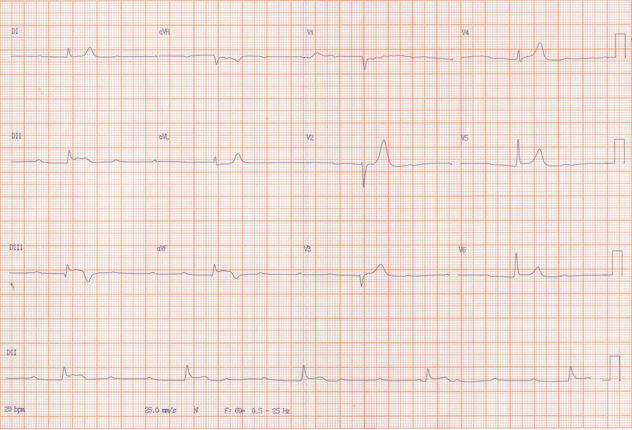 Paciente hombre de 60 años, diabético y dislipémico con SCA por compromiso de CD antes del ramo que irriga NAV y  enfermedad difusa de demás arterias coronarias con PCI a vaso culpable y CRM programada