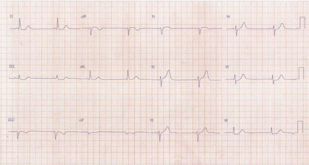 Paciente hipertenso que cursa con angor prolongado y síntomas vagales por isquemia grado 1 e infarto auricular