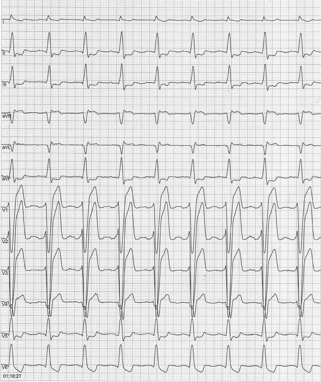 Paciente masculino de 55 años,  diabético, asintomático que presenta signos ECG de miocardiopatía isquémica y presencia de hipoquinesia difusa a predominio de cara anterior
