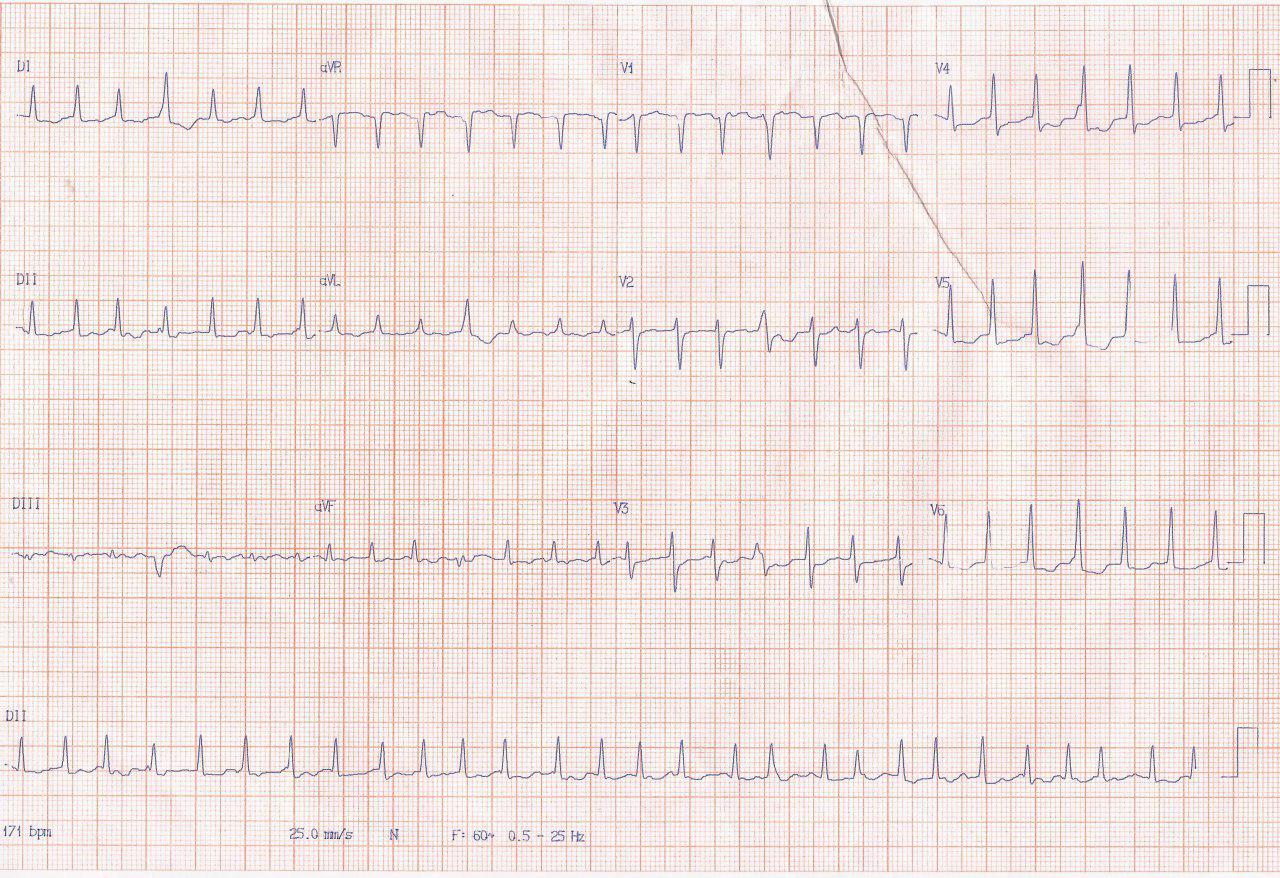 Mujer de 58 años que presenta taquicardia con inestabilidad hemodinámica por presencia de vía anómala pósteroseptal derecha