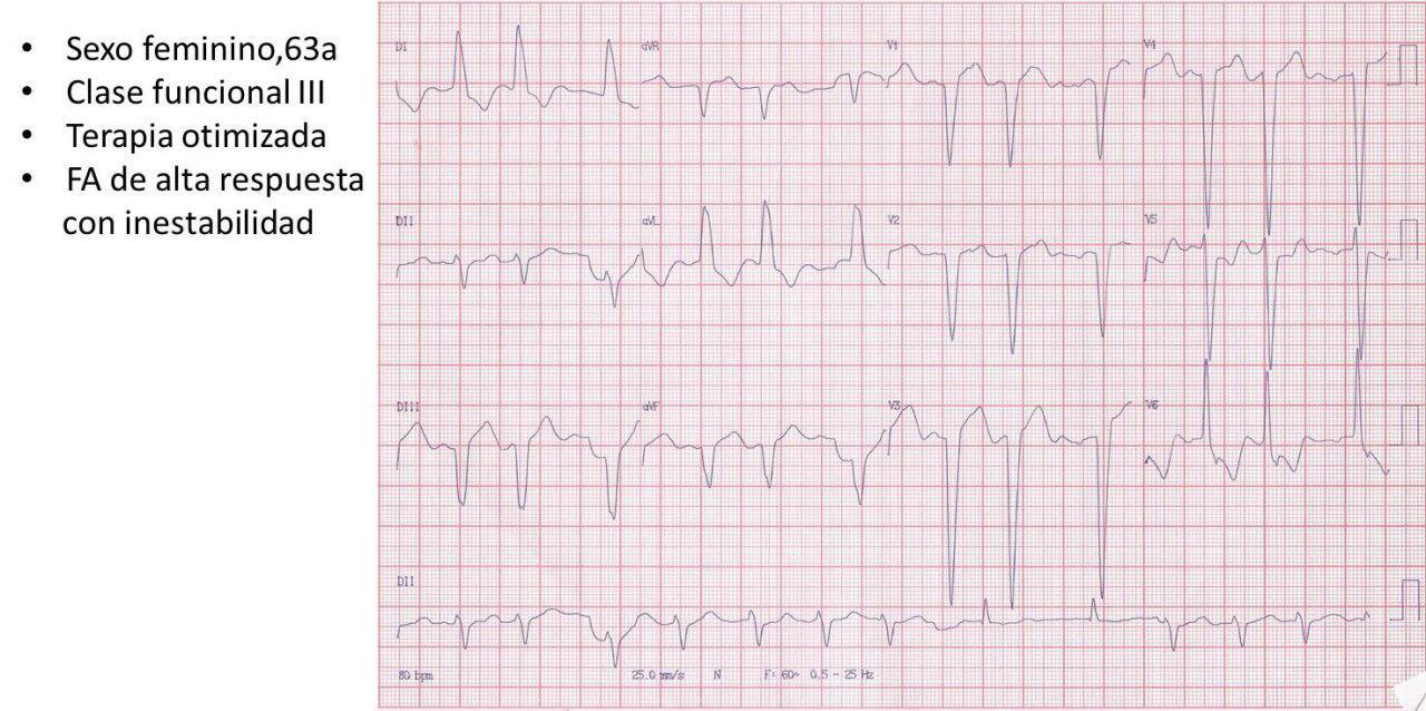 Mujer de 63 años que presenta FA con alta respuesta ventricular y descompensación hemodinámica por presentar miocardiopatía hipertrófica obstructiva a quién se practica miomectomía exitosa