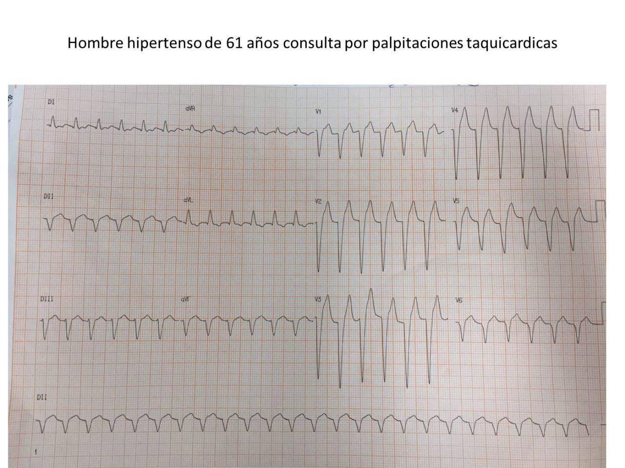 Hombre hipertenso de 61 años que presenta palpitaciones recurrentes y en quién la inyección de adenosina permite desenmascarar un aleteo auricular