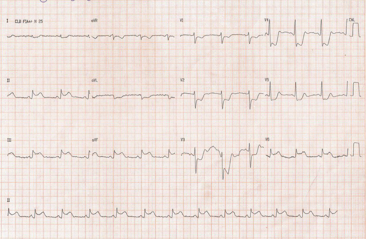 ECG de paciente cursando SCA por afectación de DA y CD