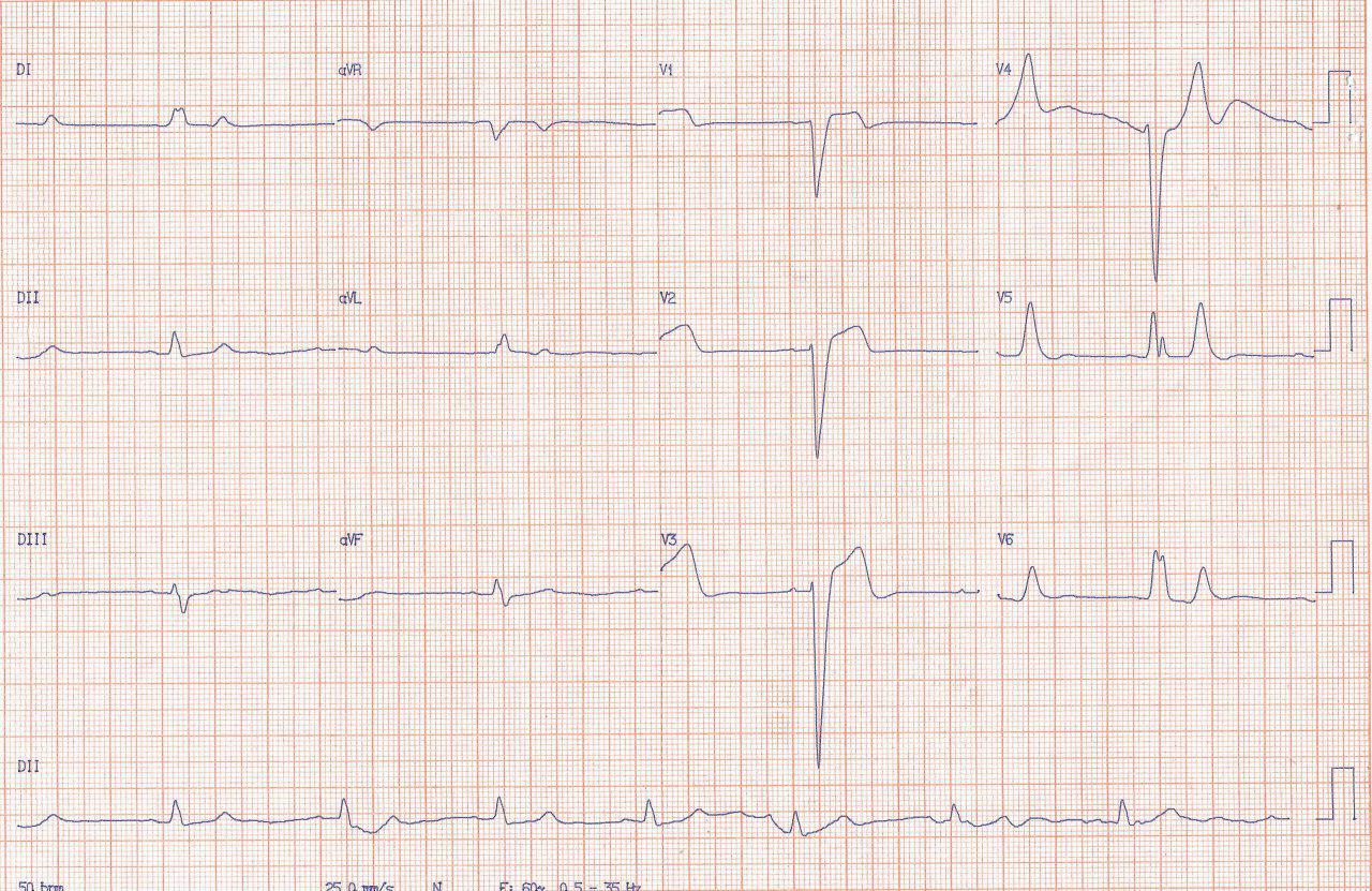 Hombre de 57 años con arterias coronarias normales que presenta mareos
