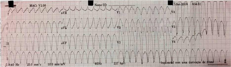 Paciente masculino de 78 años hipertenso y portador de cardiopatía isquémica con palpitaciones y mareos por presentar taquicardia por reentrada rama a rama