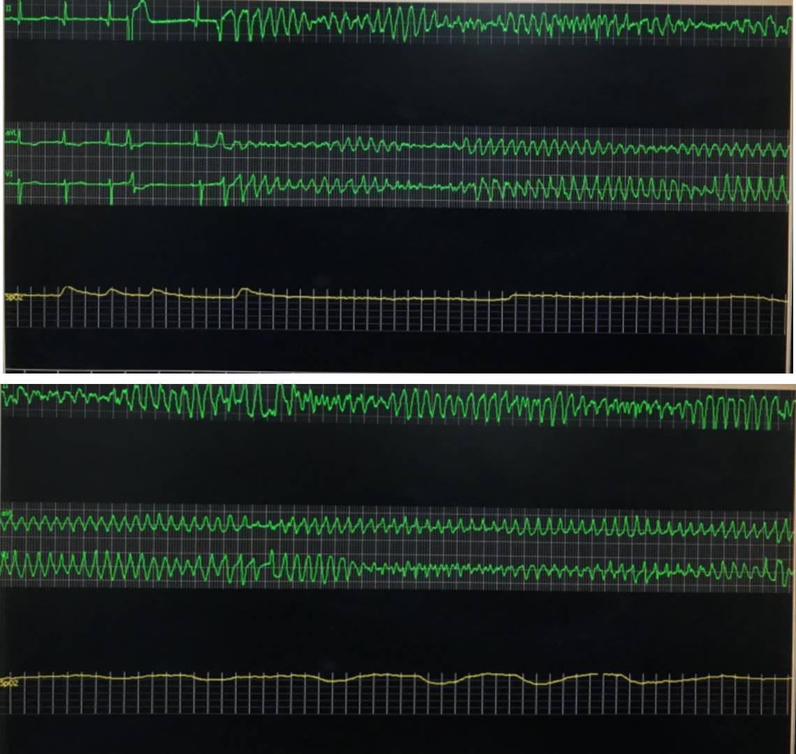 Masculino de 74 años con antecedente de cirugía de by pass con puente venoso aorto coronario a la DA hace 10 años que presenta síncope por presentar TdP debido a obstrucción del puente venoso y de Cx