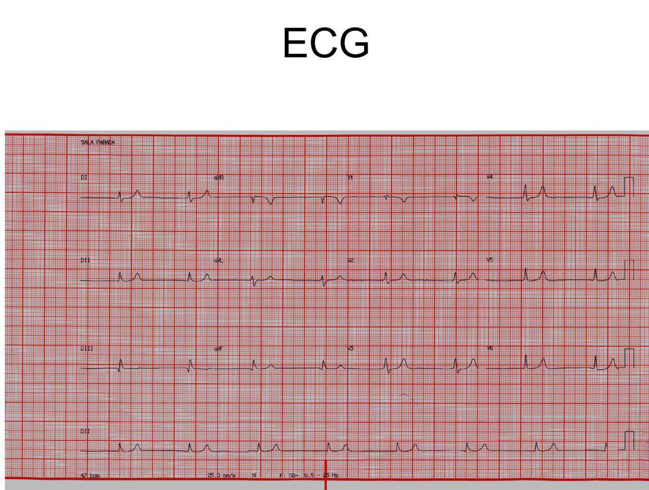 Paciente de 85 años, hipertenso, diabético y con insuficiencia renal con disnea progresiva que presenta severa hiperkalemia de 7,7 mEq/l
