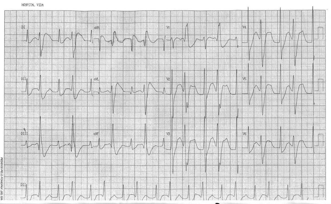 Hombre de 53 años con cuadriparesia a predominio de MI por hipokalemia de 1,7 mEq/l que mejora al corregirse el déficit con aporte EV de ClK