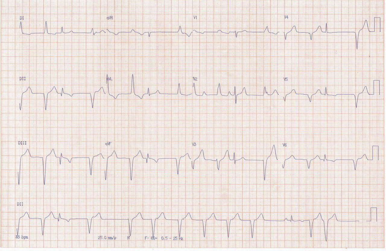 Mujer de 61 años con episodio de angor prolongado que muestra un RIVA en el ECG posiblemente por reperfusión espontánea y lesión significativa en tercio medio de la CD