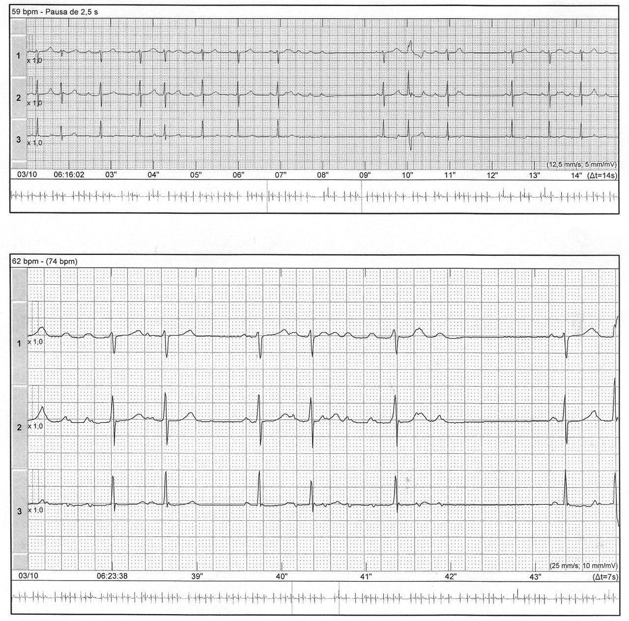 Holter de mujer hipertensa con palpitaciones para mostrar la presencia de Fenómeno de Ashman