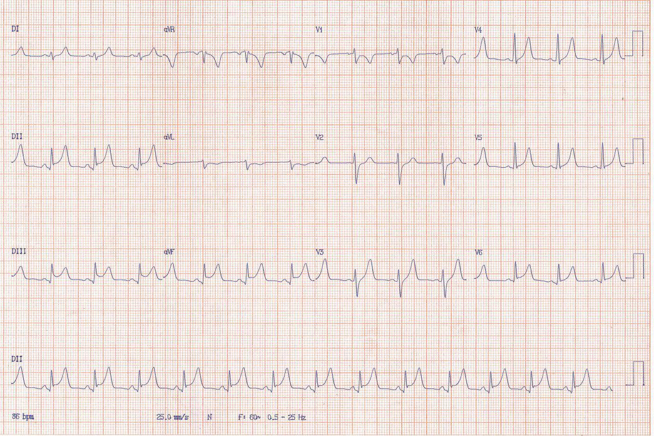 Paciente masculino de 21 años que presenta dolor precordial y parestesia de brazo izquierdo con ECG compatible con espasmo coronario o miocarditis aguda