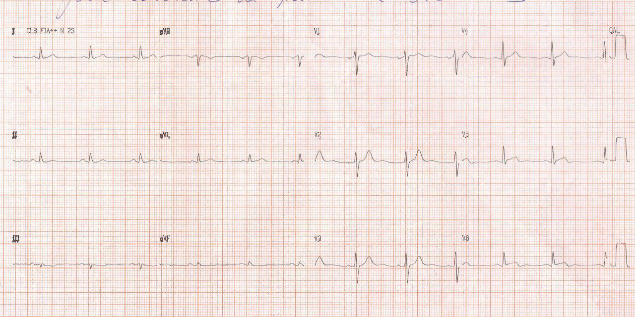 Paciente masculino de 51 años con angor prolongado por compromiso silencioso de la arteria Cx
