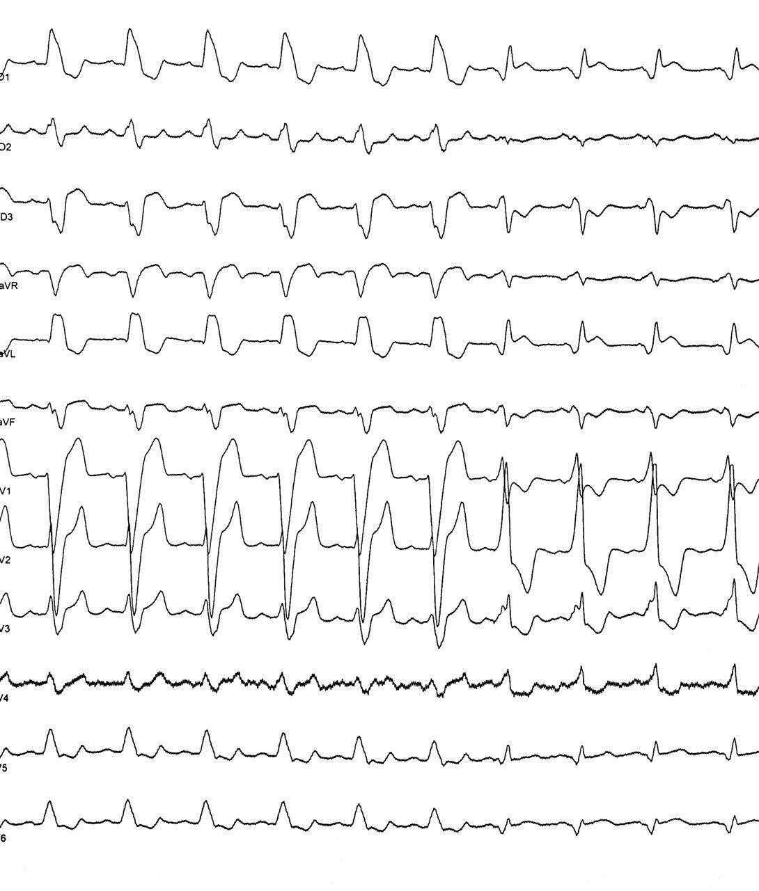 Paciente masculino de 49 años portador de miocardiopatía dilatada al que se implanta TRC observándose correcta resincronización de ambos ventrículos