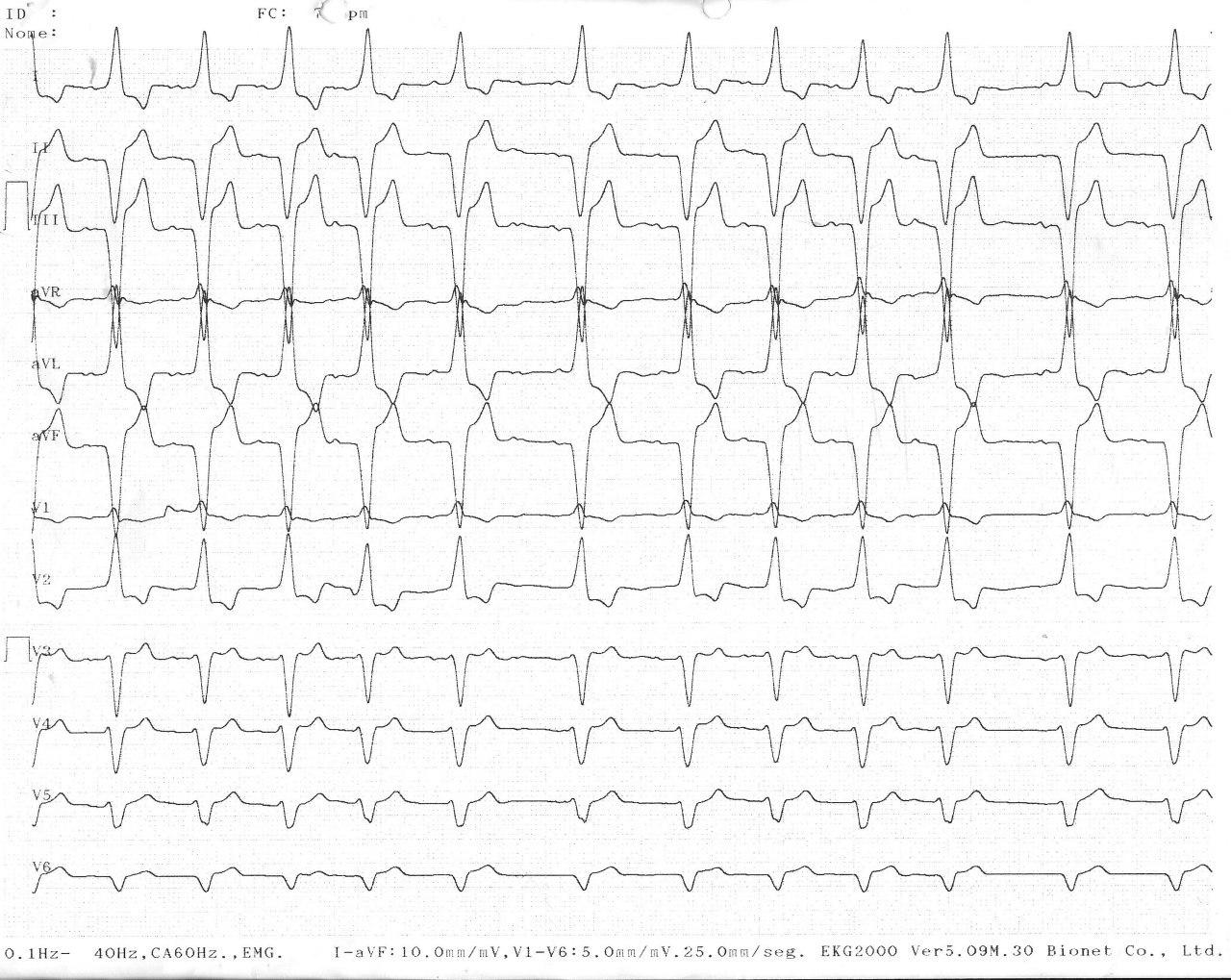 Mujer de 83 años portadora de marcapasos bicameral que presenta ECG con patrón de BRD en precordiales y BRI en derivaciones periféricas asociada a cardiopatía estructural severa de mal pronóstico