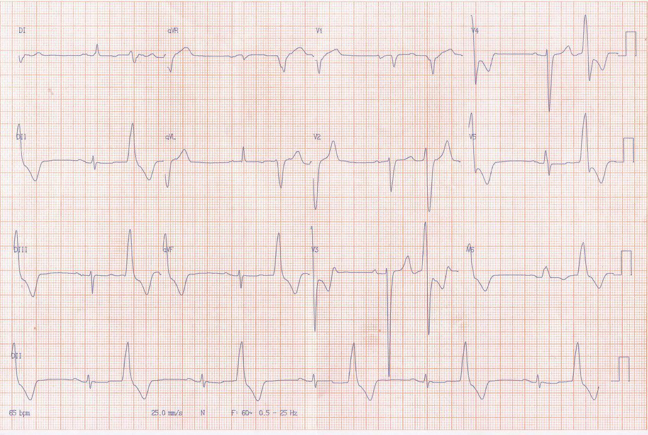 Paciente masculino de 74 años portador de miocardiopatía chagásica que se halla en clase funcional III y tiene elevado riesgo de MS