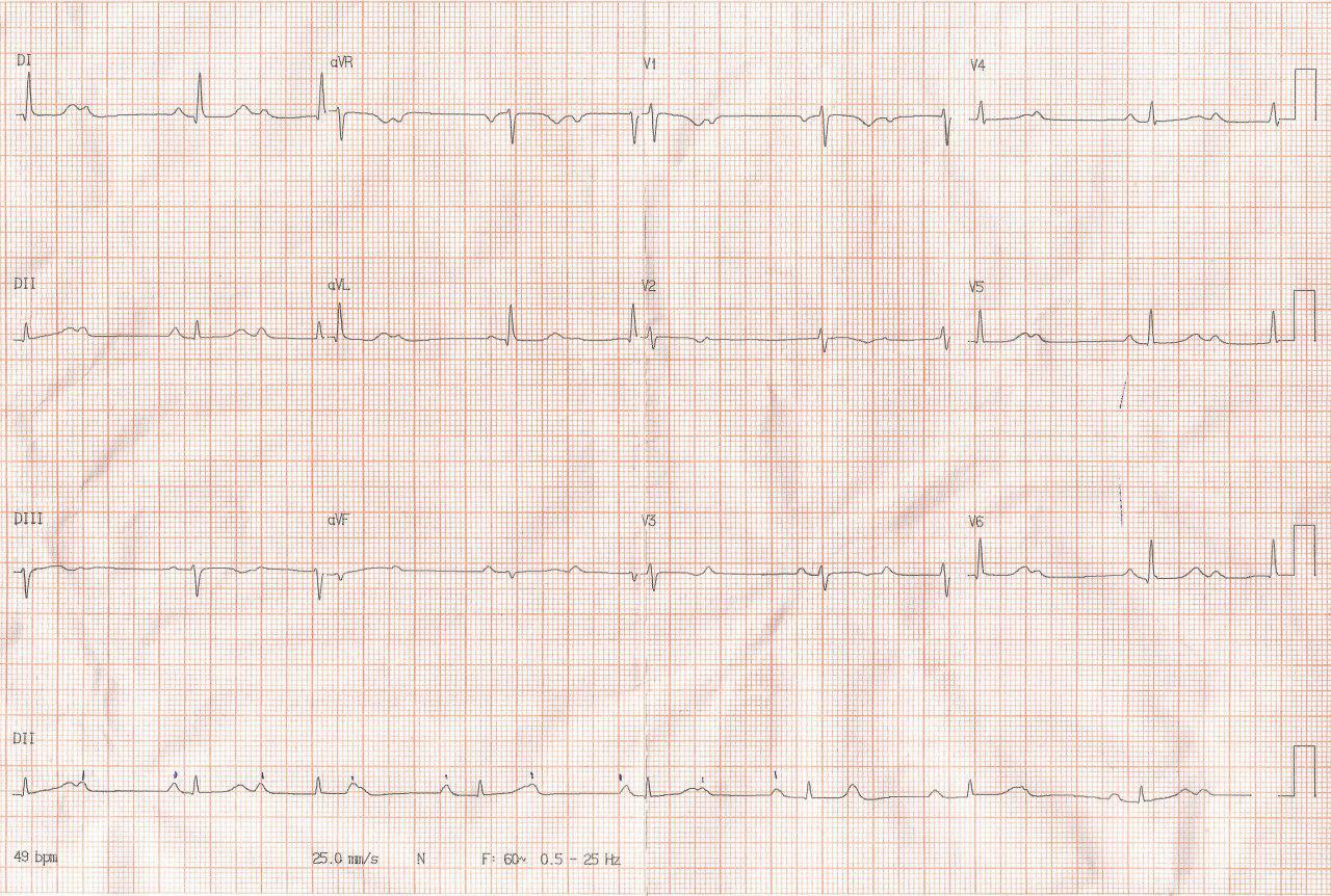 Paciente femenina de 47 años con mareos y fatiga por presentar BAV 2:1 y de más alto grado que requiere MP