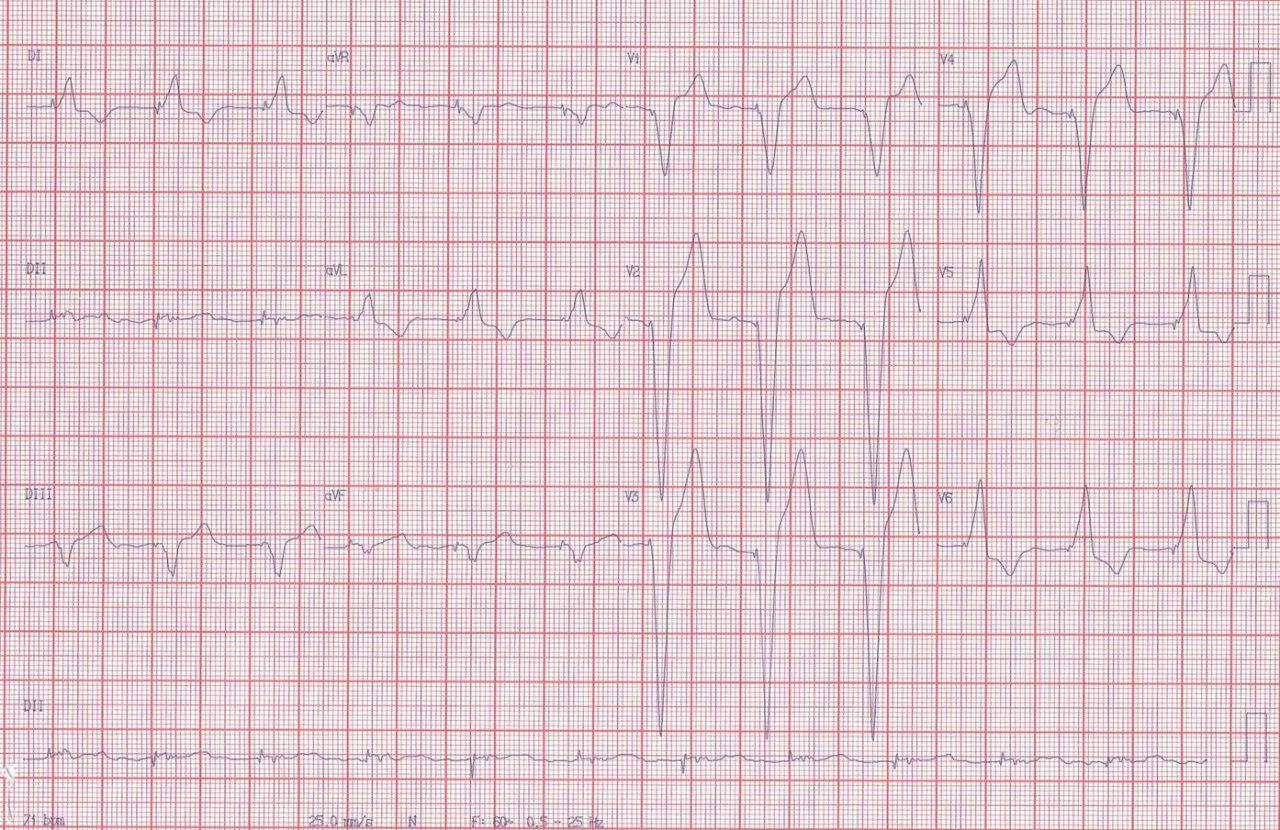 Paciente portador de MP que presenta episodio de angor, troponina normal y cuya CCG muestra arterias coronarias normales, siendo el dolor atribuible a disicronía ventricular
