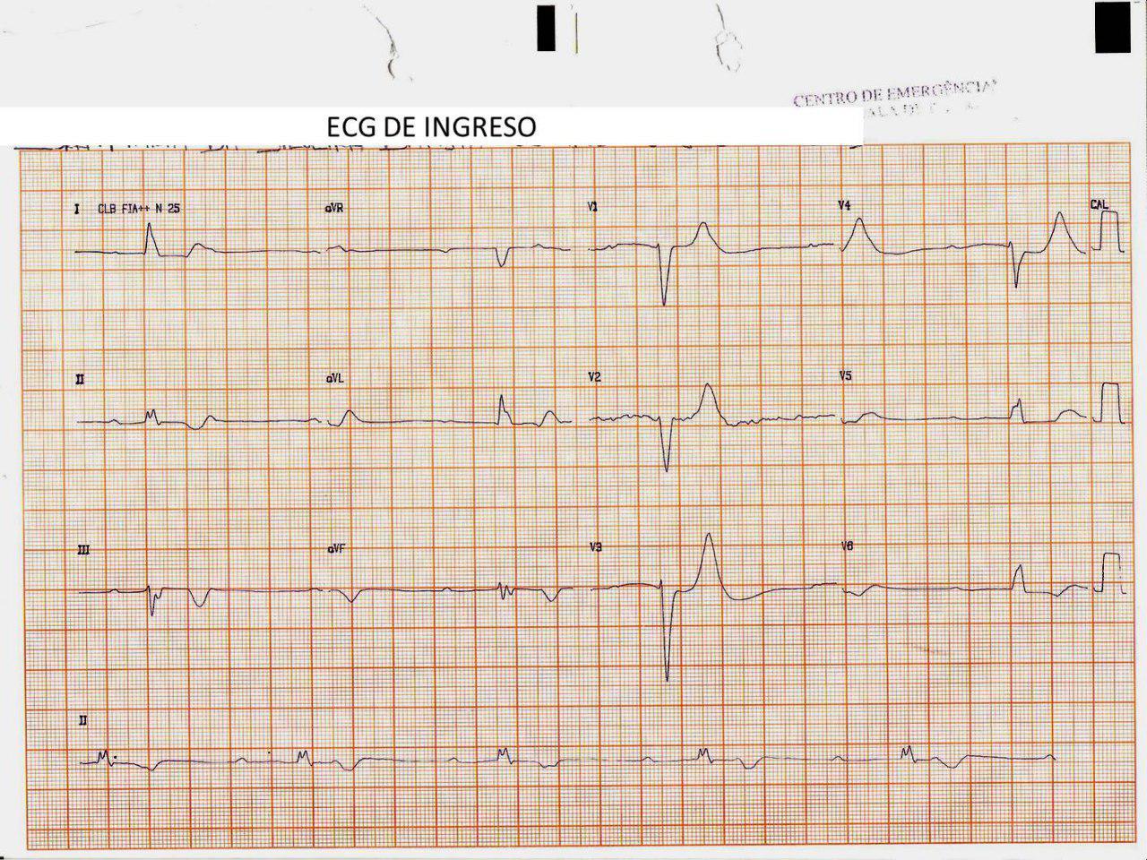 Mujer de 63 años, hipertensa y diabética con insuficiencia renal crónica e hiper K que presenta episodios sincopales por BAVC