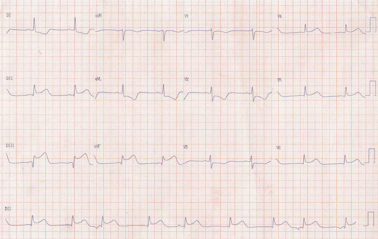 Ritmo auricular ectópico en el contexto de SCA con compromiso de la arteria del nódulo sinusal