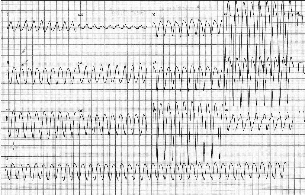 Hombre de 63 años portador de miocardiopatía dilatada, en insuficiencia cardíaca con arterias coronarias normales, que presenta episodio sincopal debido a TV