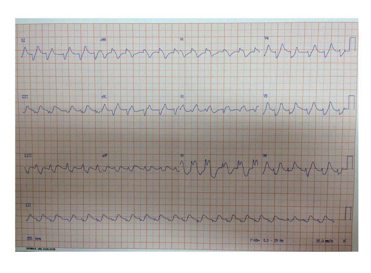Paciente masculino de 81 años con severa hiperK de 9,6mEq/ml que presenta TV y recibe CVE