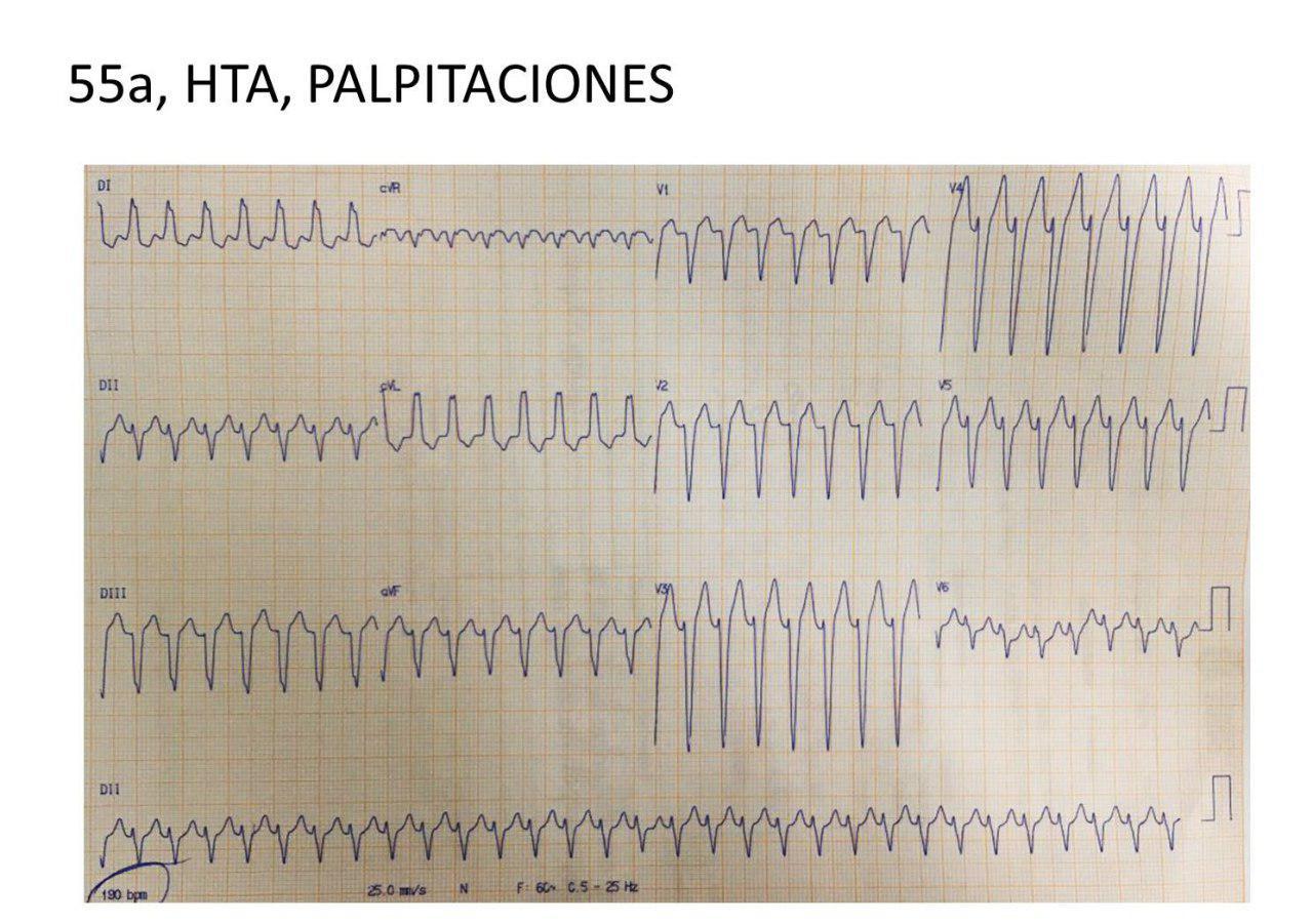 Paciente de 55 años con palpitaciones por presencia de TPSV con complejos aberrantes, que revierte con adenosina