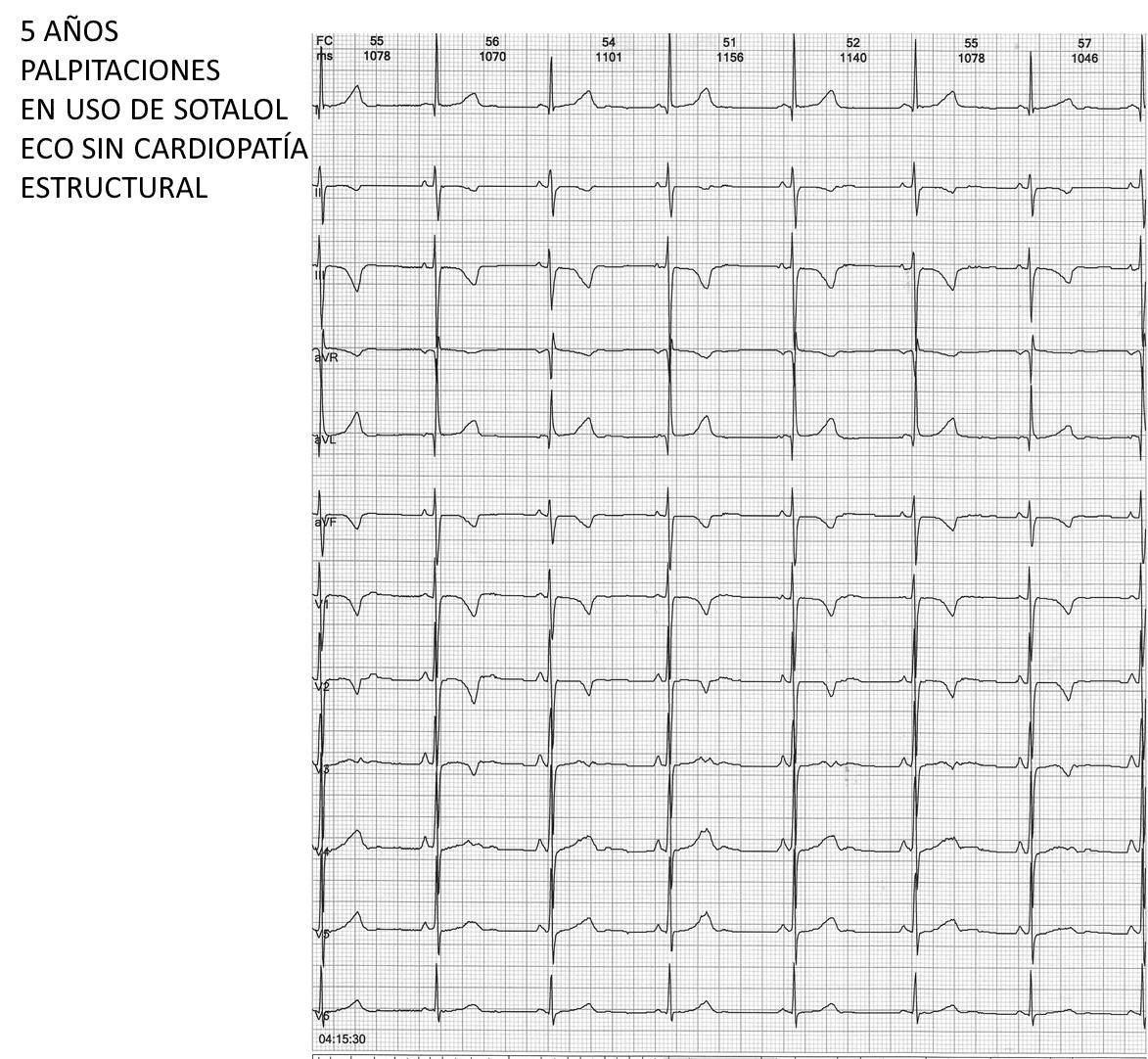 Niño de 5 años con EVs muy frecuentes en contexto de corazón estructuralmente normal a quién se indicó sotalol