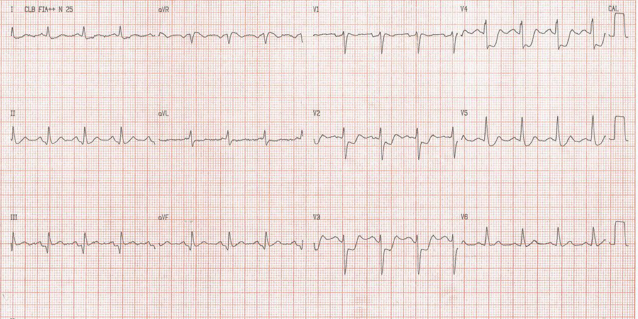 Hombre de 61 años con antecedente de infarto inferior previo que presenta angor prolongado por oclusión total de DA y Cx