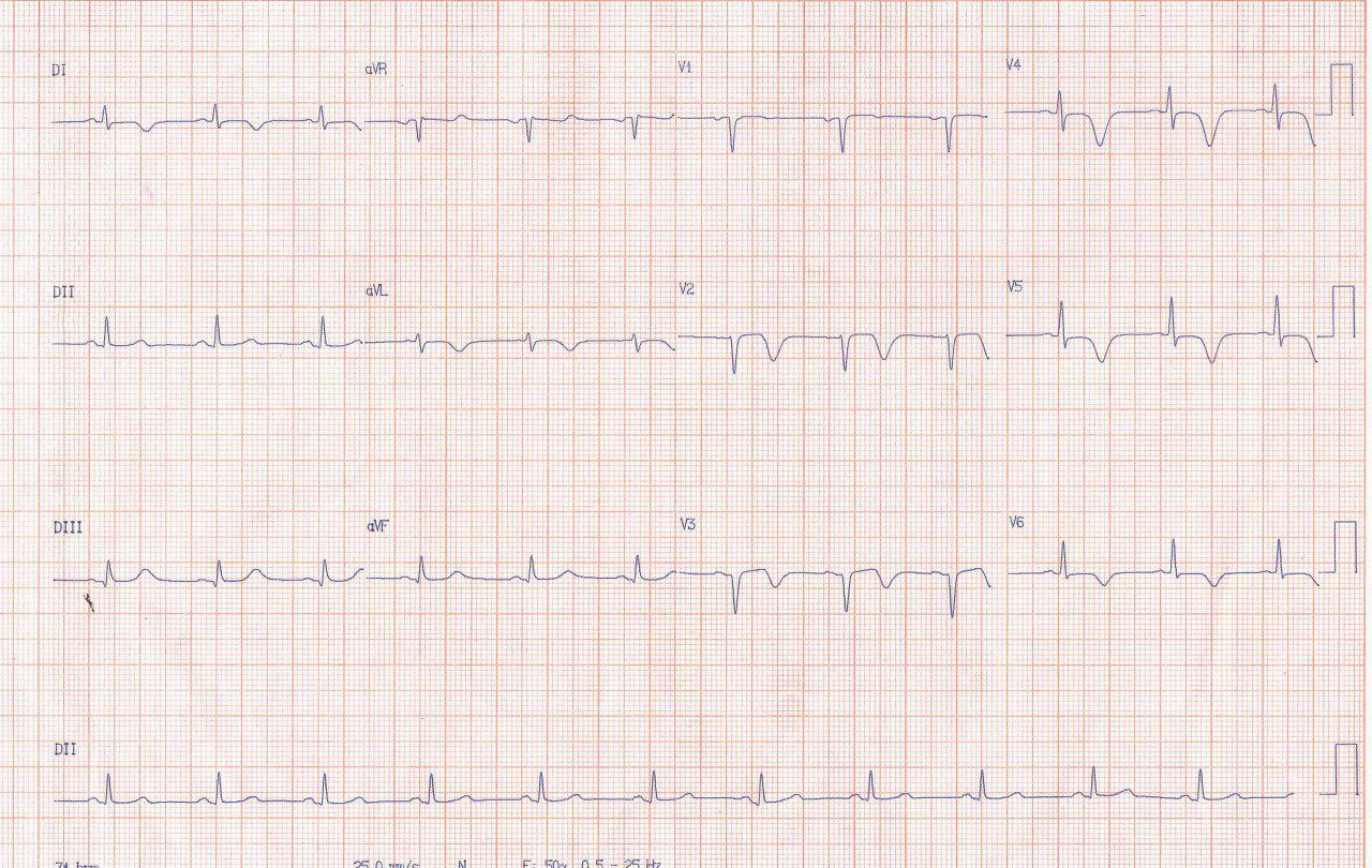 Paciente hipertenso y diabético que durante episodio de angor prolongado por compromiso de la DA proximal, presenta pseudonormalización de la onda T