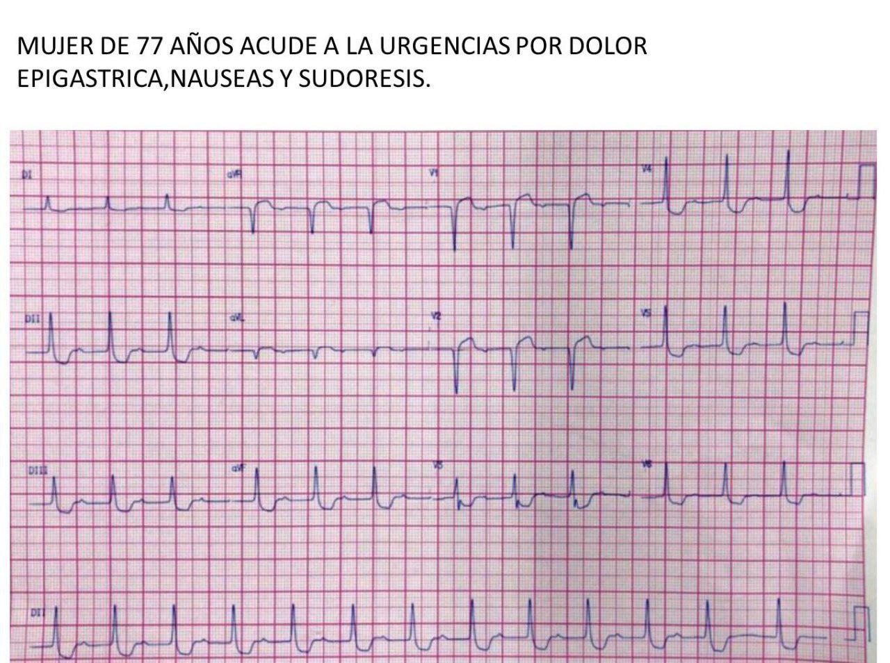 Mujer de 77 años con dolor precordial, nauseas y sudoración con ritmo de la unión por intoxicación digitálica