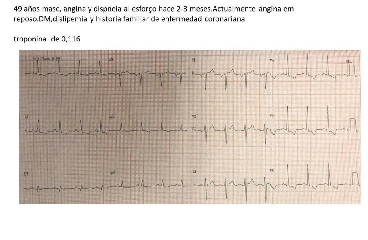 Paciente masculino de 49 años con disnea y angor progresivo que se hizo de reposo por presentar severa enfermedad coronaria y una aorta de porcelana