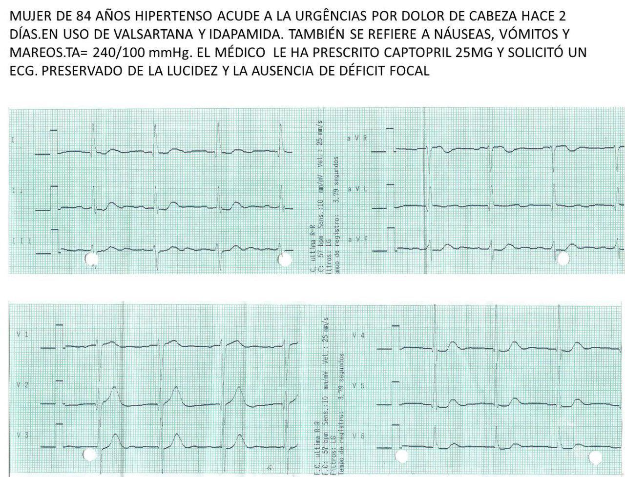 Mujer de 84 años, hipertensa con intensa cefalea náuseas y vómitos que presenta CCG normal, cuadro que es interpretado como miocardiopatía de TakoTsubo