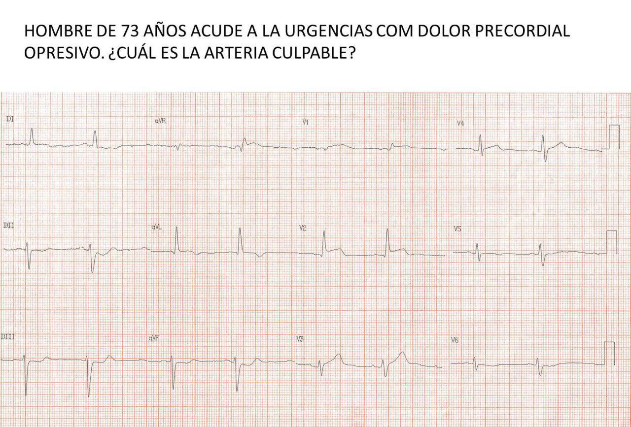 Paciente masculino de 73 años con angor prolongado con supradesnivel ST en aVL por compromiso de arteria DA proximal