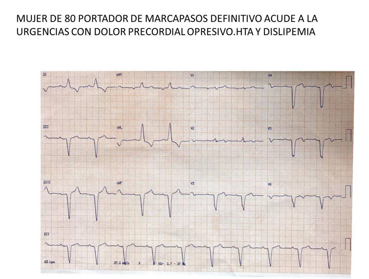 Mujer de 80 años con factores de riesgo y MP implantado que presenta episodio de angor prolongado por compromiso de arteria Cx que es angioplastiada