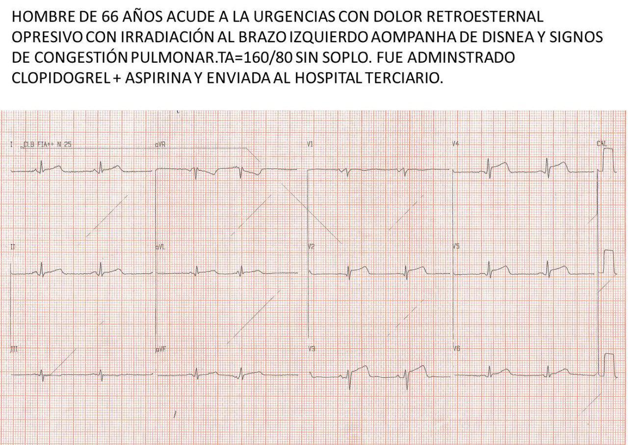 Paciente masculino de 66 años con angor y disnea con signos de congestión pulmonar secundarios a SCA por compromiso de TCI y ECG no típico de lesión de tronco