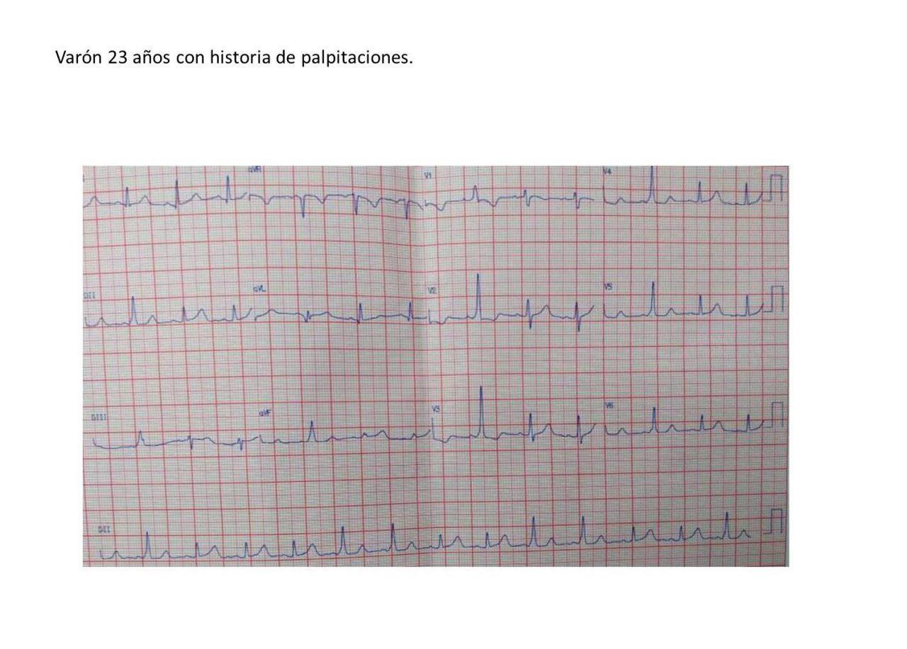Varón de 23 años sin cardiopatía estructural o disfunción ventricular con preexcitación intermitente