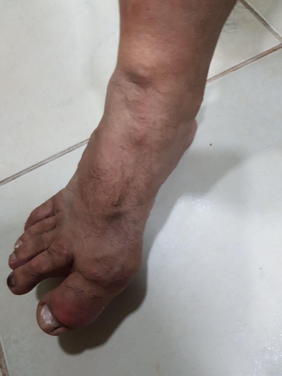 Paciente masculino de 51 años con severa artritis gotosa