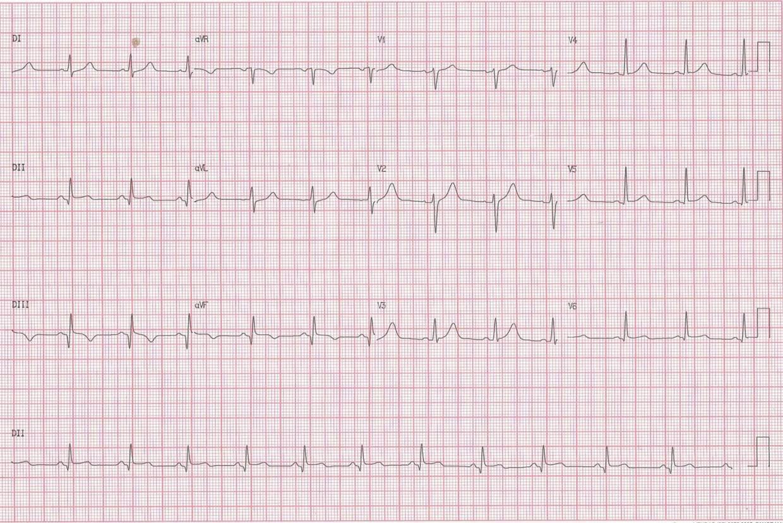 Sendos pacientes masculinos de 25 y 41 años con SCA post consumo del suplemento OxyElite Pro (OEP – 1.3-dimethylamylamine (DMAA)). CCG del primero y ECG post revascularización del 2do